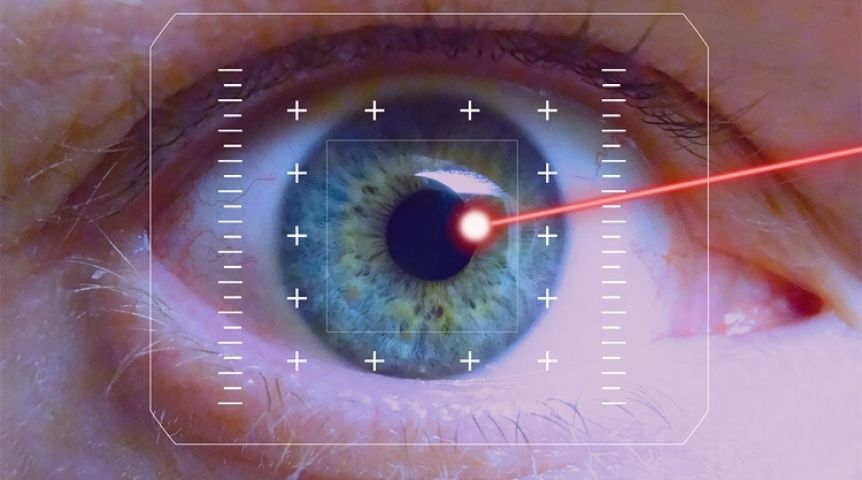 laser eye surgery research paper Photorefractive surgery is performed using an excimer laser in an attempt to correct refractive errors such as short-sightedness (myopia), astigmatism, and more recently long-sightedness (hypermetropia) these refractive errors are usually corrected by spectacles or contact lenses however, over the years.